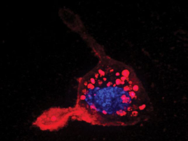 Hitting a nerve: In this image, captured by Gaurav Sahay, Avi Schroeder and Paulina Hill of the Langer and Anderson Labs at the Koch Institute, tiny lipid pouches (red) have been taken up by a nerve cell. Similar pouches could be used to transport therapeutics into diseased cells.