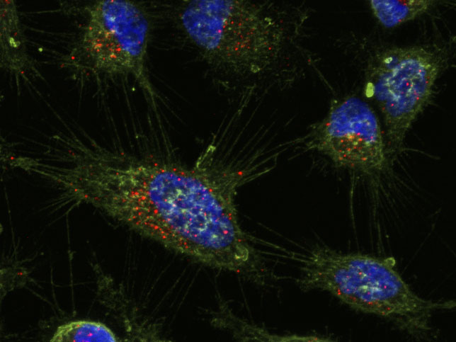 How can we turn off the genes that promote the development of cancer? Using specially designed nanoparticles as genetic patches, engineers can deliver customized payloads to a cell's gel-like cytoplasm where most cellular activity occurs, and mitigate the effects of cancer-causing genes in the cell's nucleus. This image shows nanoparticles (red) in the cytoplasm of cervical tumor cells (green). Credit: Omar F. Khan, Edmond W. Zaia.